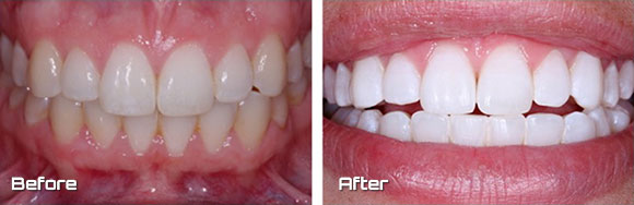 teeth-whitening gallery